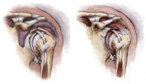Healthy shoulder (left); arthritic shoulder (right); image courtesy of www.biomet.co.uk.