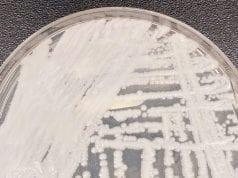 C. auris in a petri dish.