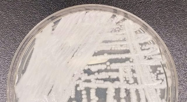 C. auris in a petri dish.