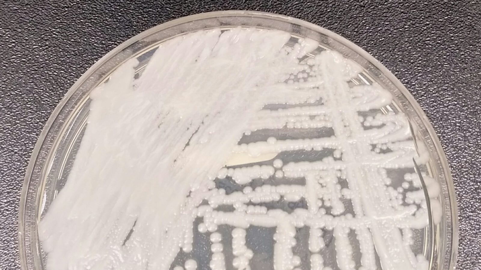 A Candida auris culture grown and kept by the CDC; image courtesy of CDC.gov, public domain.