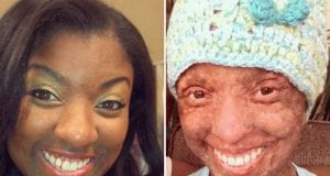 Woman Burns From The Inside Outside Due To Medication