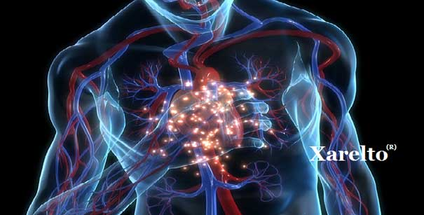 Graphic of human clutching chest; image courtesy of www.megaleadsolutions.com.