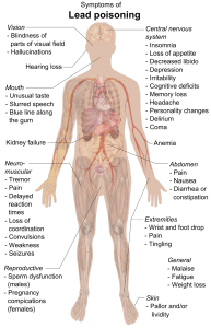 Symptoms of lead poisoning; image by Mikael Häggström (Own work), CC0, via Wikimedia Commons.