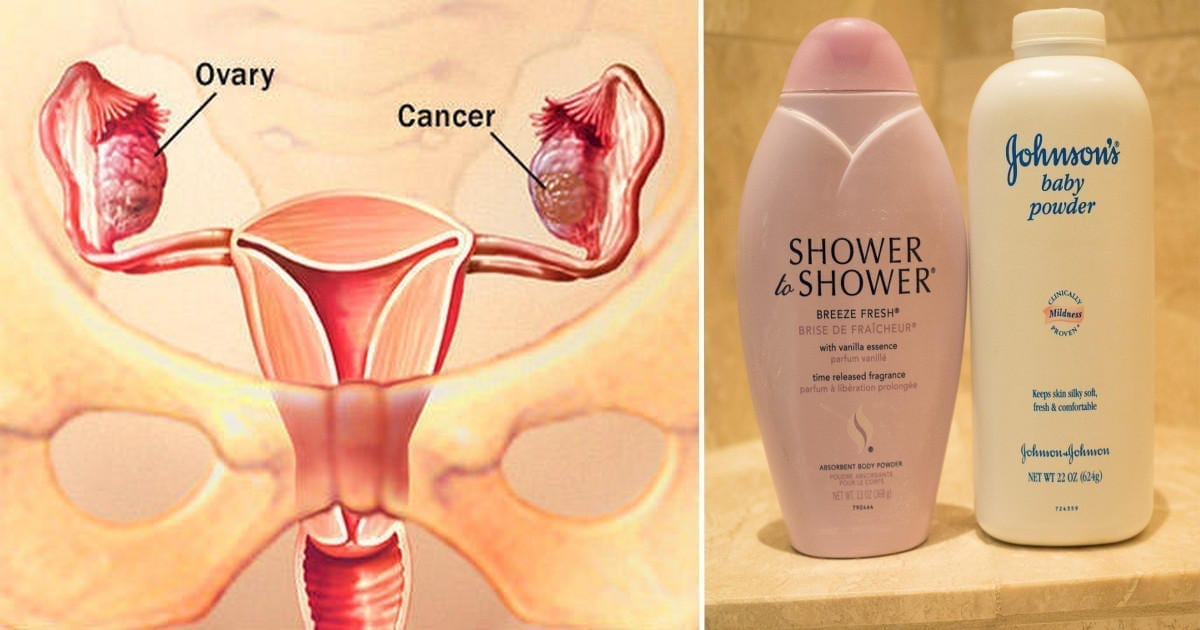 Graphic of healthy and cancerous ovaries (left) with image of talc products (right); image courtesy of www.eathealthyplans.com.