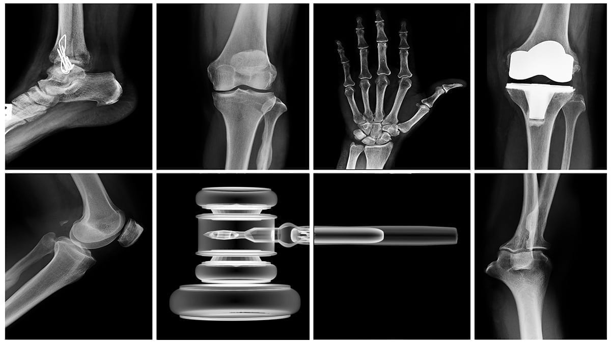 X-rays of various body parts and a gavel; image courtesy of www.abaforlawstudents.com.
