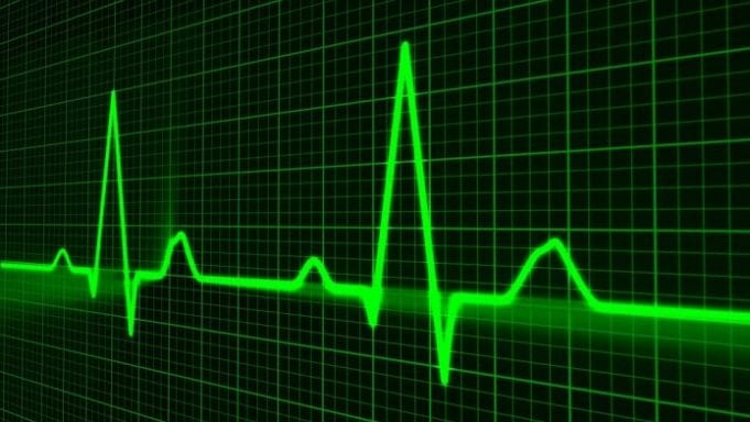Heartbeat on a monitor; image courtesy of www.usaherald.com.