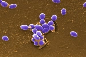 Microscopic image of blue-tinted Enterococcus faecalis bacteria on a brown background.
