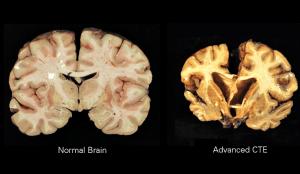 Image of chronic traumatic encephalopathy