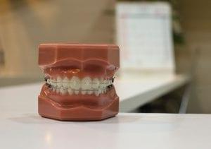 Image of a dental model