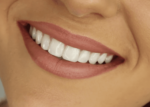 Healthy, beautiful smile; image by Liz20151222, CC BY-SA 4.0, no changes, via Wikimedia Commons.
