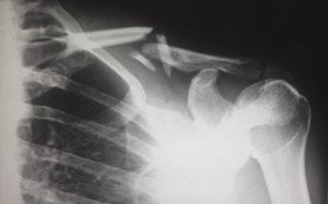 X-ray showing a broken clavicle; image by Harlie Raethel, via unsplash.com.s