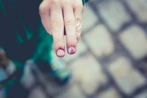 Man extending two injured fingers; image by Markus Spiske, via Unsplash.com.