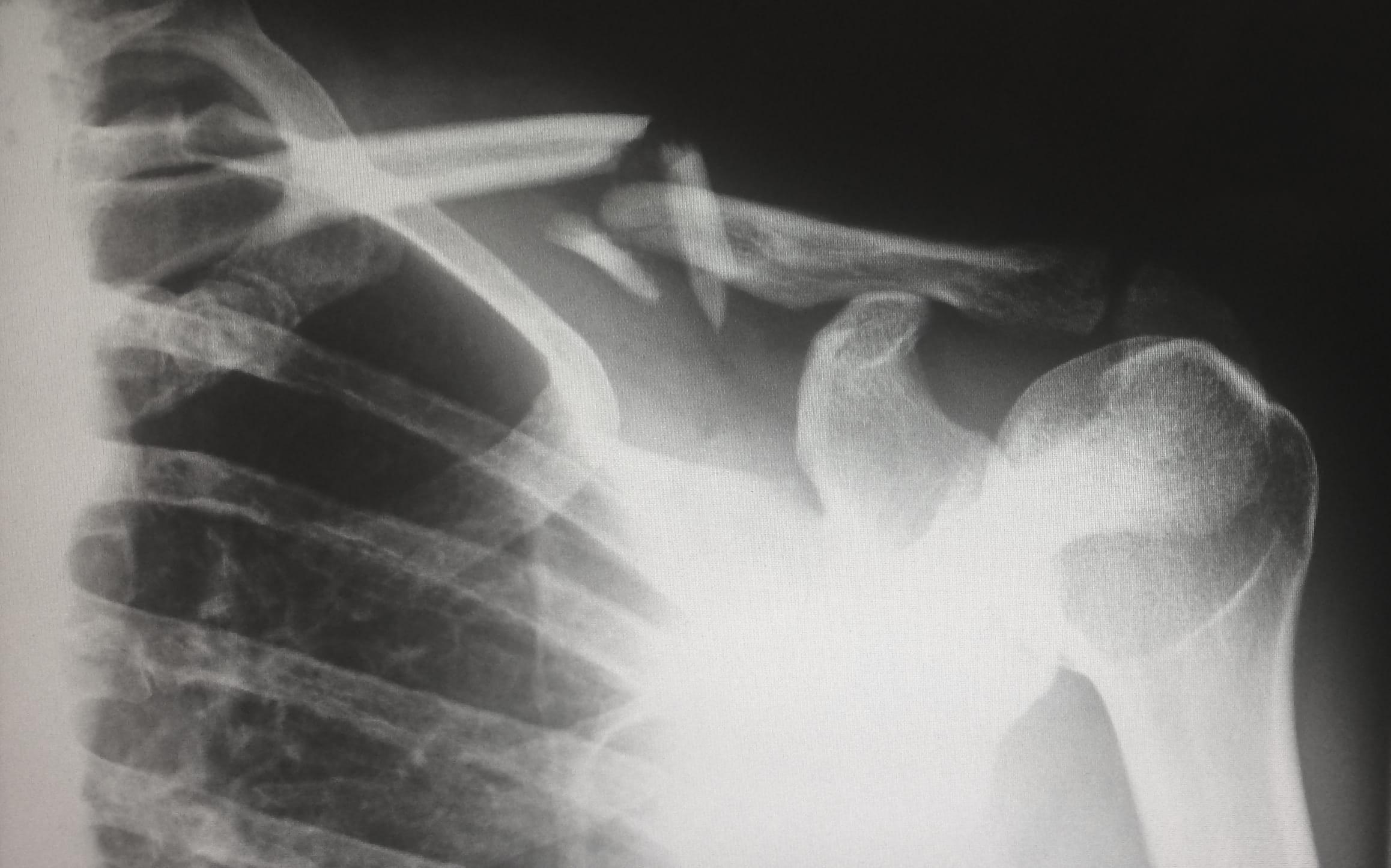 X-ray of broken collar bone; image by Harlie Raethel, via Unsplash.com.