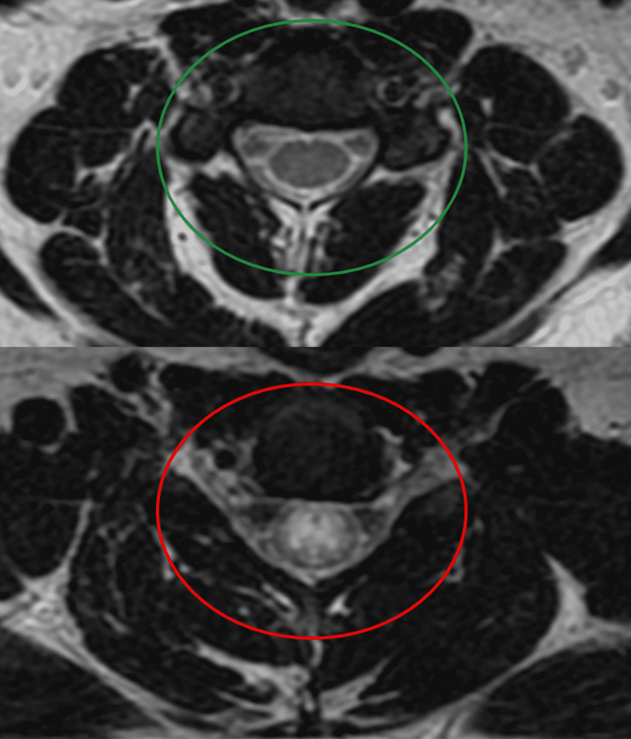 Axial T2 MRI of cervical spine demonstrating normal cord signal (green circle) and abnormal increased T2 signal in the central cord (red circle) with transverse myelitis. Image by JasonRobertYoungMD, via Wikimedia Commons, CC BY-SA 4.0, no changes.