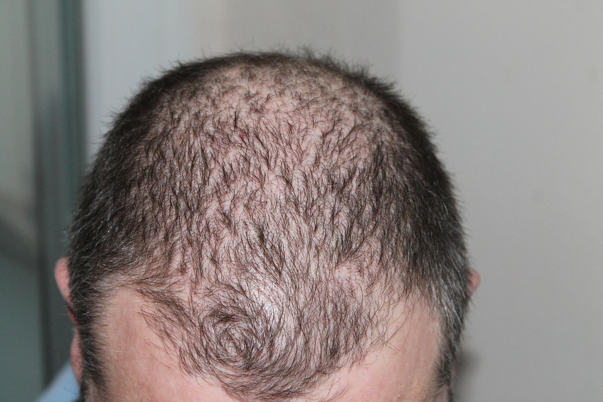 Balding man; image by kalhh, via Pixabay.com.