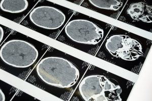 Texas A&M Team Reports Results of Traumatic Memory Reversal Study