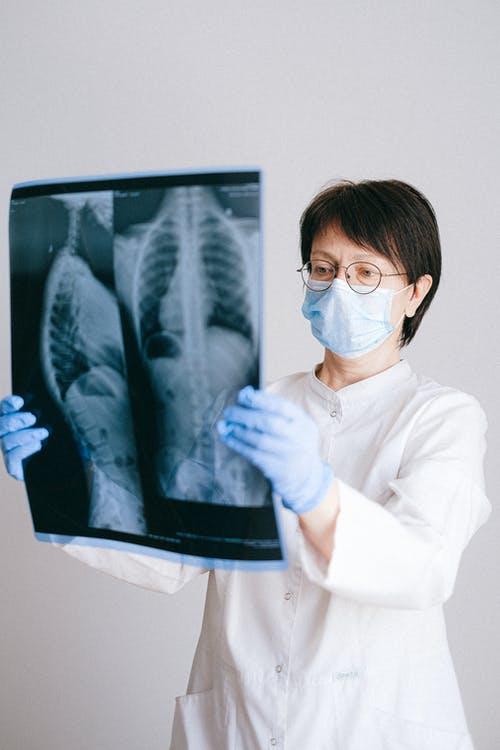 Arthritis Drug Tocilizumab Might Improve COVID Pneumonia